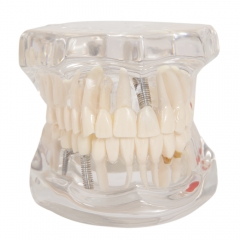 Dental Study Teach Implant Teeth Model Restoration Bridge Caries Tooth Education White & Transparent
