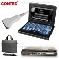 10.1 inch TFT LCD notebook full digital B-Ultrasound diagnostic system linear probe