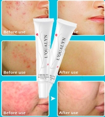 2pcs Acne Cream Acne Treatment Skin Care Pimple Acne Remover Face Anti Acne Repair Cream as picture