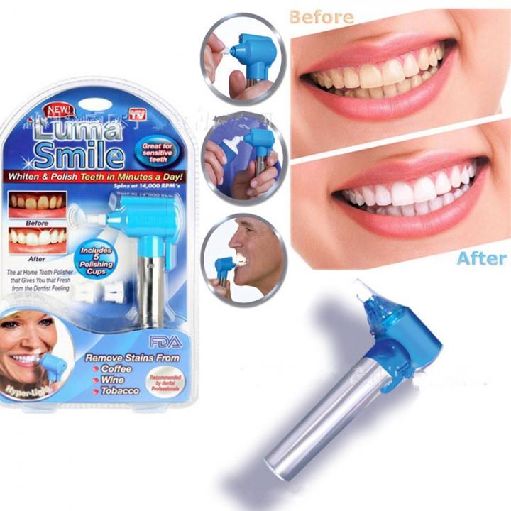 Luma Smile Tooth polishing machine Teeth whitening instrument one onesize