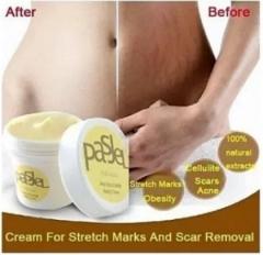 PasJel Stretch Mark & Scar Removal Cream yellow