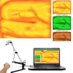 Infrared Vein Finder and Vein Viewer for all people ,view veins of whole body