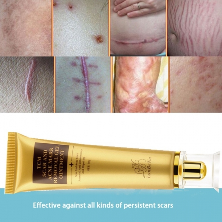 LANBENA scar and acne mark removal gel as picture