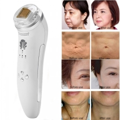 2 Types Body Massage Lifting Tightening Reomve Wrinkles Stretch Marks RF Radio Frequency Machine white