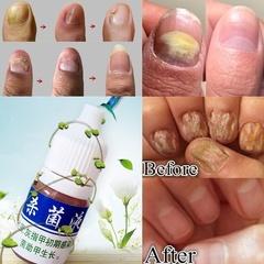 10ml Fungus Nail Fungus Treatment Cuticle Oil Onychomycosis Paronychia Anti Fungal Nail Infection 10ml