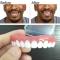 Instant Smile Comfort Fit Flex Teeth Whitening Denture Paste False Teeth Upper blue