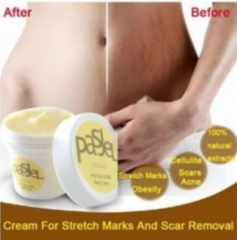 PasJel Cream For Stretch Marks & Scar Removal Yellow